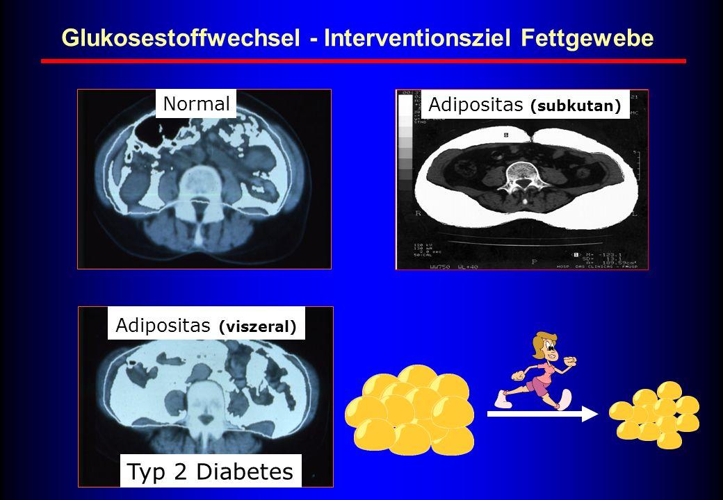 Typ 2 Diabetes Adipositas (subkutan) Adipositas (viszeral) Normal Glukosestoffwechsel - Interventionsziel Fettgewebe