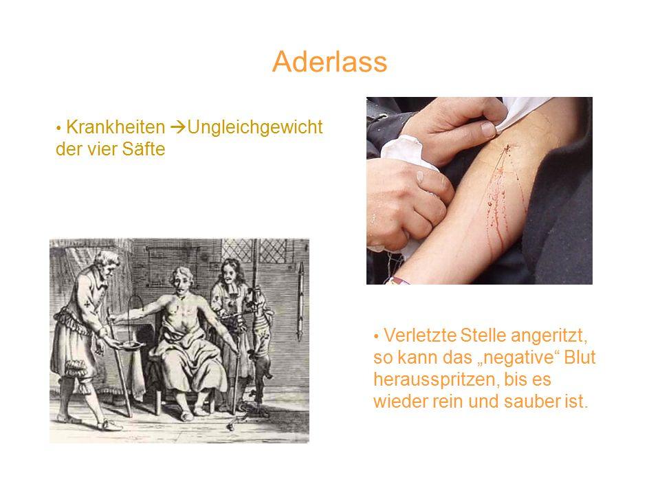"""Aderlass Verletzte Stelle angeritzt, so kann das """"negative Blut herausspritzen, bis es wieder rein und sauber ist."""