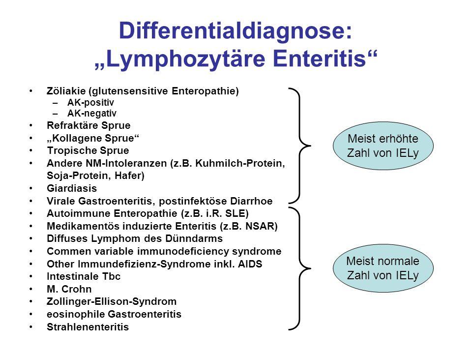 "Differentialdiagnose: ""Lymphozytäre Enteritis"" Zöliakie (glutensensitive Enteropathie) –AK-positiv –AK-negativ Refraktäre Sprue ""Kollagene Sprue"" Trop"