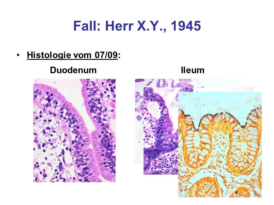 Fall: Herr X.Y., 1945 Histologie vom 07/09: DuodenumIleum
