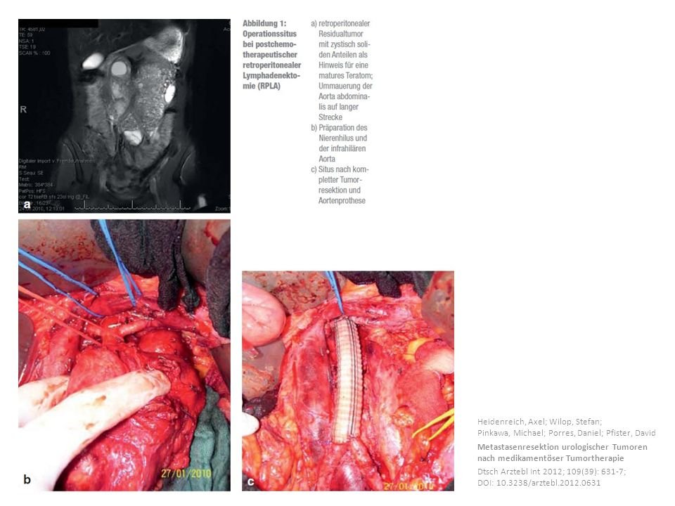 Heidenreich, Axel; Wilop, Stefan; Pinkawa, Michael; Porres, Daniel; Pfister, David Metastasenresektion urologischer Tumoren nach medikamentöser Tumort