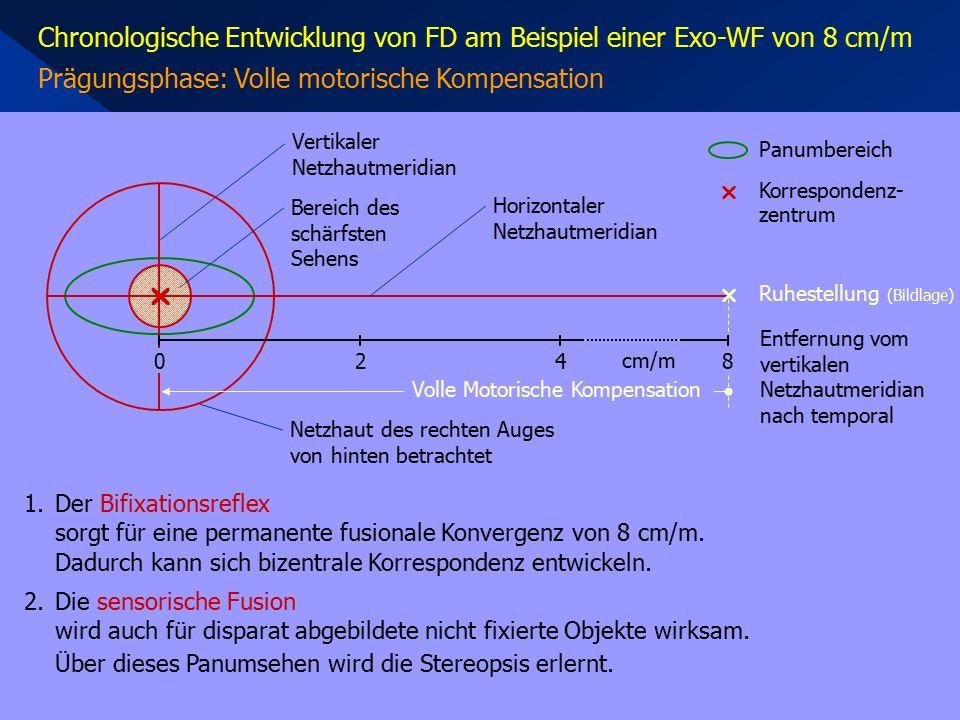 Chronologische Entwicklung von FD am Beispiel einer Exo-WF von 8 cm/m Prägungsphase: Volle motorische Kompensation Horizontaler Netzhautmeridian Vertikaler Netzhautmeridian  Netzhaut des rechten Auges von hinten betrachtet 1.Der Bifixationsreflex sorgt für eine permanente fusionale Konvergenz von 8 cm/m.
