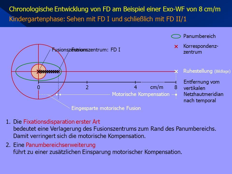 Chronologische Entwicklung von FD am Beispiel einer Exo-WF von 8 cm/m Kindergartenphase: Sehen mit FD I und schließlich mit FD II/1 1.Die Fixationsdisparation erster Art bedeutet eine Verlagerung des Fusionszentrums zum Rand des Panumbereichs.