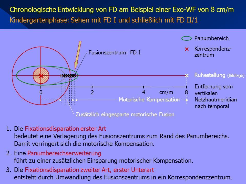 Chronologische Entwicklung von FD am Beispiel einer Exo-WF von 8 cm/m Kindergartenphase: Sehen mit FD I und schließlich mit FD II/1  420 1.Die Fixationsdisparation erster Art bedeutet eine Verlagerung des Fusionszentrums zum Rand des Panumbereichs.