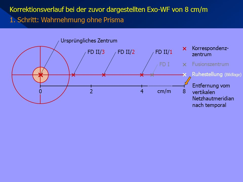 Korrektionsverlauf bei der zuvor dargestellten Exo-WF von 8 cm/m 1. Schritt: Wahrnehmung ohne Prisma     Korrespondenz- zentrum  Ruhestellung (B
