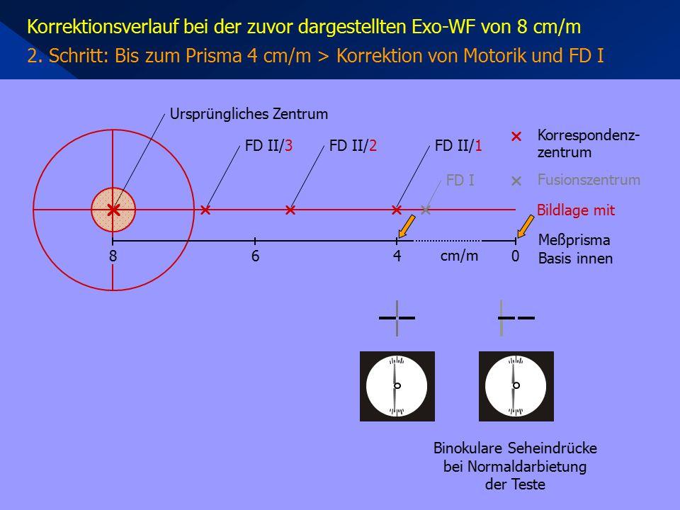 Korrektionsverlauf bei der zuvor dargestellten Exo-WF von 8 cm/m 2. Schritt: Bis zum Prisma 4 cm/m > Korrektion von Motorik und FD I     Korrespo
