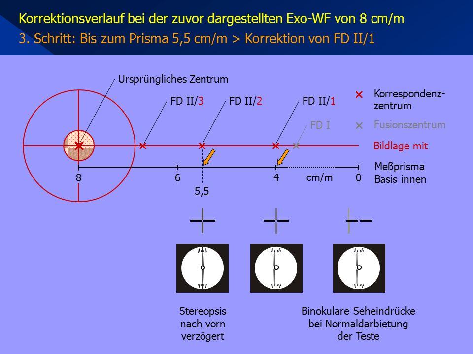 Korrektionsverlauf bei der zuvor dargestellten Exo-WF von 8 cm/m 3. Schritt: Bis zum Prisma 5,5 cm/m > Korrektion von FD II/1 Stereopsis nach vorn ver