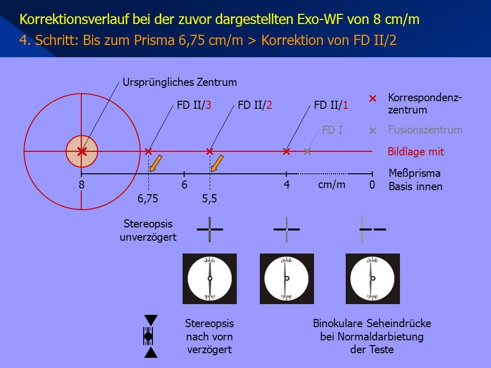 Korrektionsverlauf bei der zuvor dargestellten Exo-WF von 8 cm/m 4. Schritt: Bis zum Prisma 6,75 cm/m > Korrektion von FD II/2 Stereopsis unverzögert