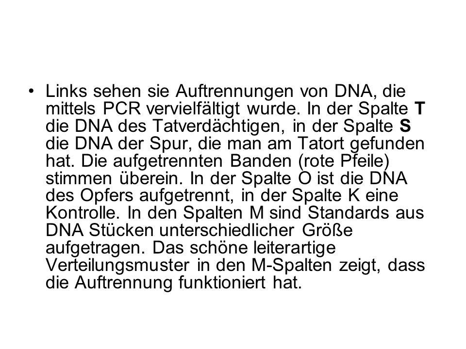 Links sehen sie Auftrennungen von DNA, die mittels PCR vervielfältigt wurde. In der Spalte T die DNA des Tatverdächtigen, in der Spalte S die DNA der