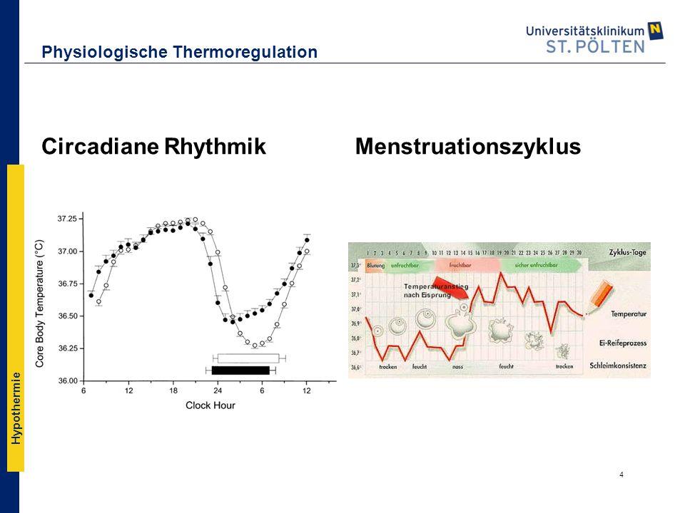 Hypothermie Realität ▪postoperative Temperatur von 74 herzchirurgischen Patienten, über einen Zeitraum von 33 Tagen des letzten Jahres (Beate Schwalbe, Klinikum Großhadern).