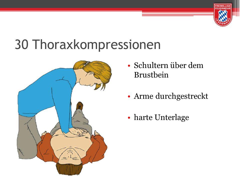 30 Thoraxkompressionen Schultern über dem Brustbein Arme durchgestreckt harte Unterlage