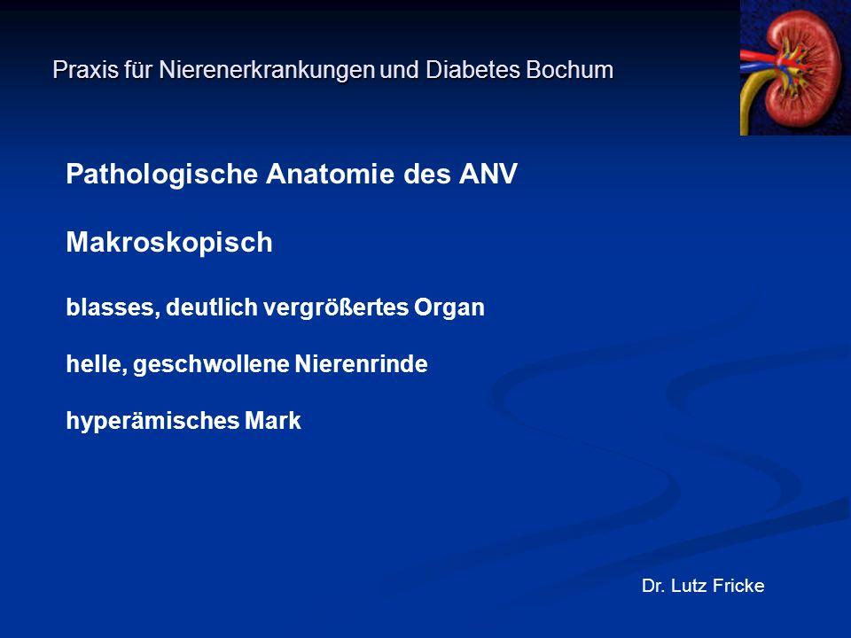Praxis für Nierenerkrankungen und Diabetes Bochum Dr. Lutz Fricke Pathologische Anatomie des ANV Makroskopisch blasses, deutlich vergrößertes Organ he
