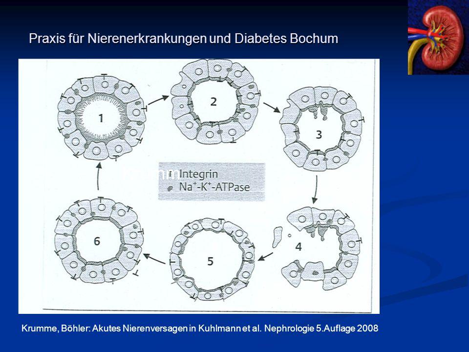 Praxis für Nierenerkrankungen und Diabetes Bochum Krumm Krumme, Böhler: Akutes Nierenversagen in Kuhlmann et al. Nephrologie 5.Auflage 2008