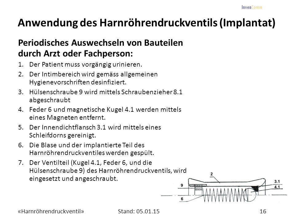 «Harnröhrendruckventil»16Stand: 05.01.15 InvenComm Anwendung des Harnröhrendruckventils (Implantat) Periodisches Auswechseln von Bauteilen durch Arzt