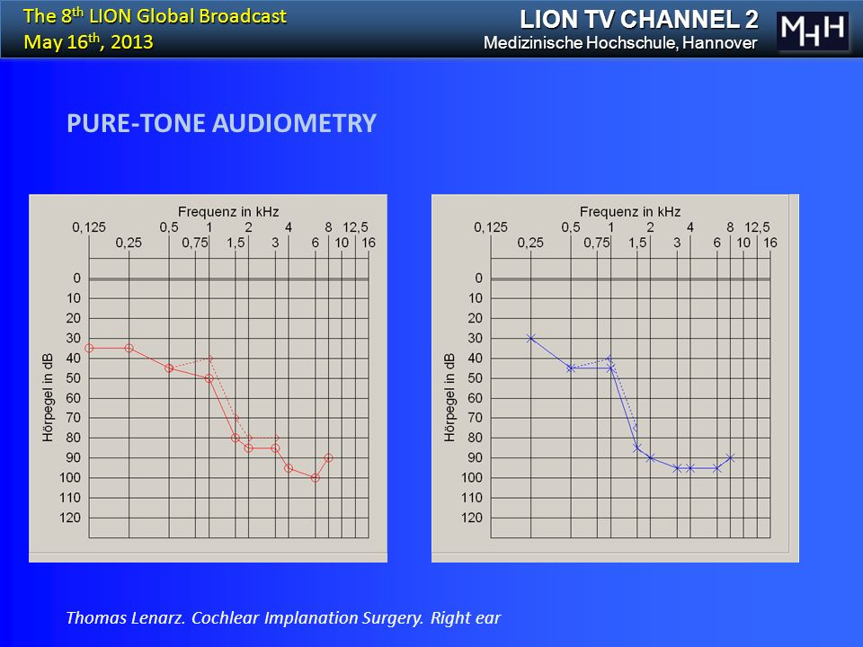 PURE-TONE AUDIOMETRY The 8 th LION Global Broadcast May 16 th, 2013 LION TV CHANNEL 2 Medizinische Hochschule, Hannover Thomas Lenarz.