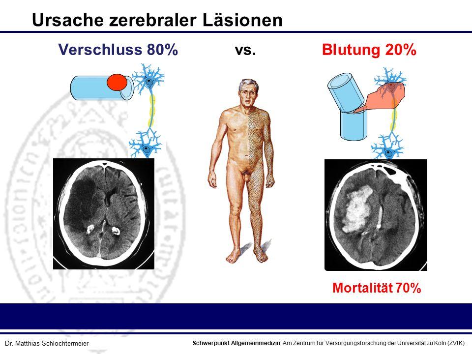 Schwerpunkt Allgemeinmedizin Am Zentrum für Versorgungsforschung der Universität zu Köln (ZVfK) © Prof. Dr. J.W. Robertz Verschluss 80% vs. Blutung 20