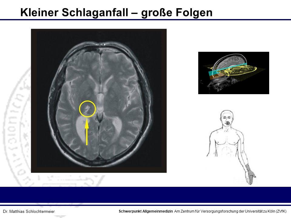 Schwerpunkt Allgemeinmedizin Am Zentrum für Versorgungsforschung der Universität zu Köln (ZVfK) © Prof. Dr. J.W. Robertz Kleiner Schlaganfall – große