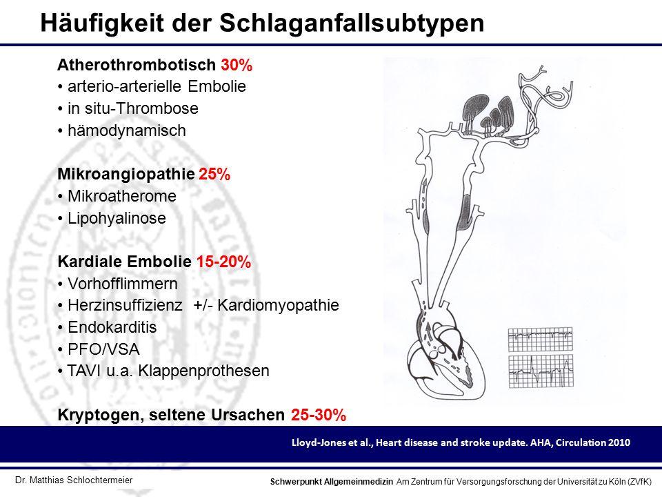Schwerpunkt Allgemeinmedizin Am Zentrum für Versorgungsforschung der Universität zu Köln (ZVfK) © Prof. Dr. J.W. Robertz Häufigkeit der Schlaganfallsu
