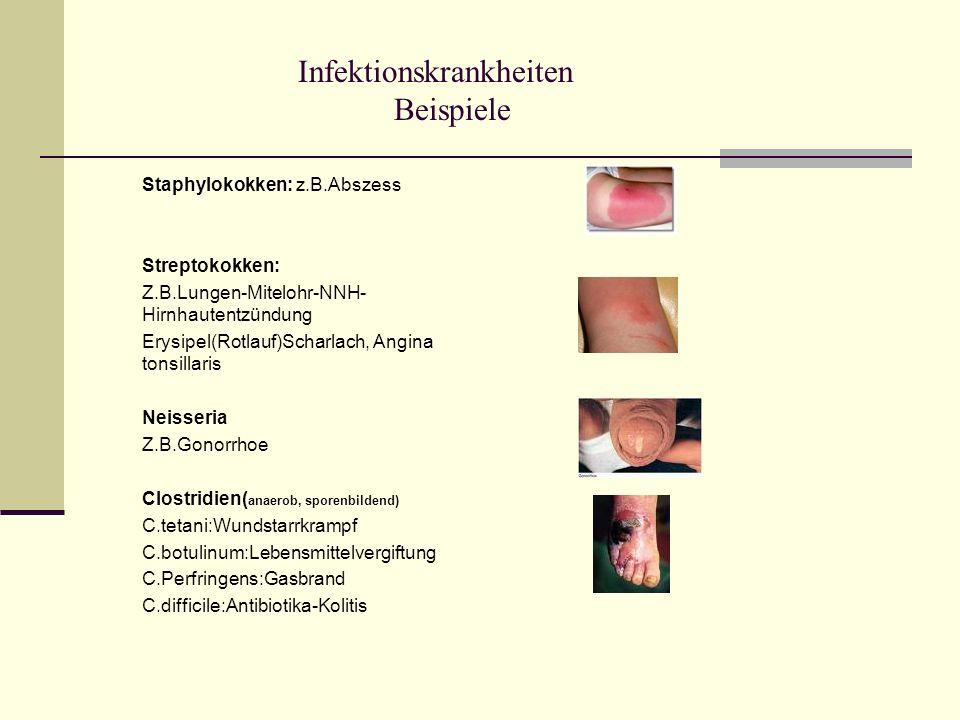 Infektionskrankheiten Beispiele Staphylokokken: z.B.Abszess Streptokokken: Z.B.Lungen-Mitelohr-NNH- Hirnhautentzündung Erysipel(Rotlauf)Scharlach, Ang