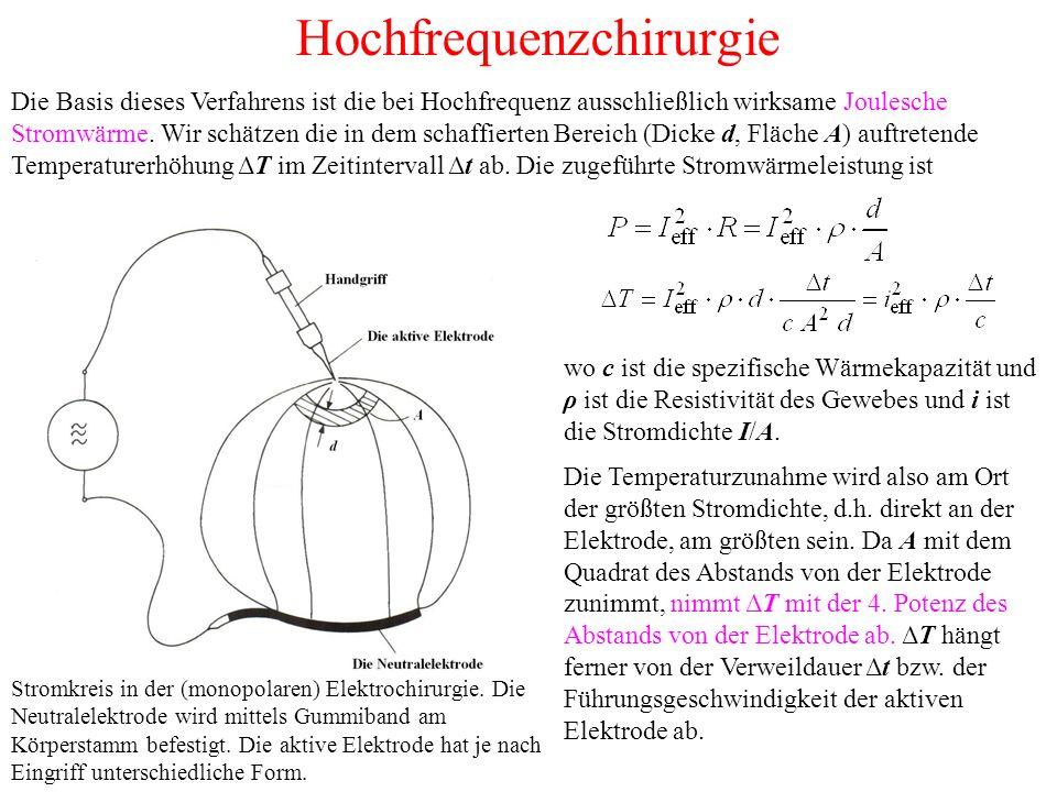 Hochfrequenzchirurgie Stromkreis in der (monopolaren) Elektrochirurgie.