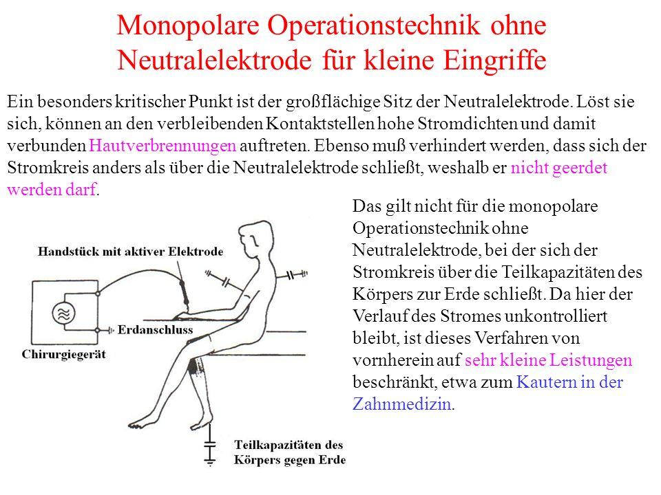 Monopolare Operationstechnik ohne Neutralelektrode für kleine Eingriffe Ein besonders kritischer Punkt ist der großflächige Sitz der Neutralelektrode.