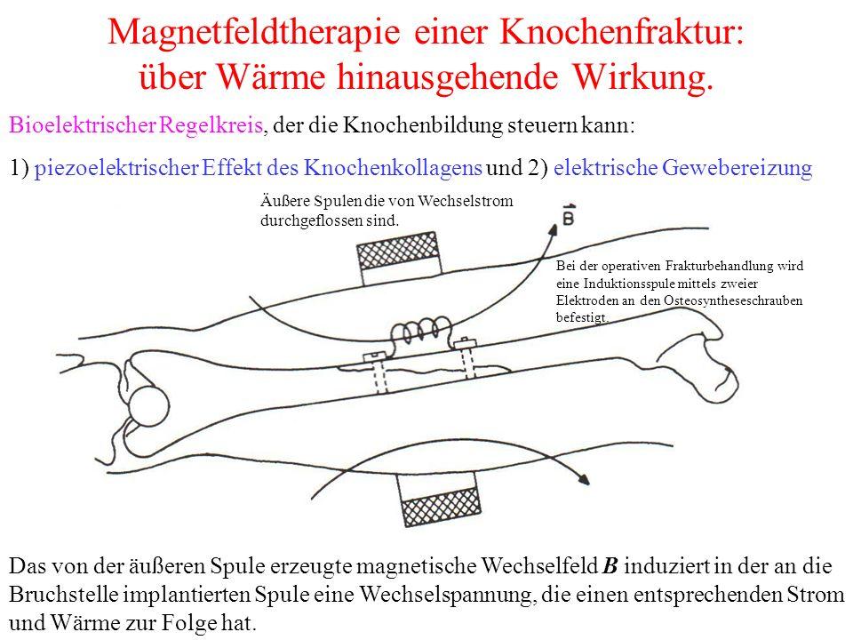 Magnetfeldtherapie einer Knochenfraktur: über Wärme hinausgehende Wirkung.