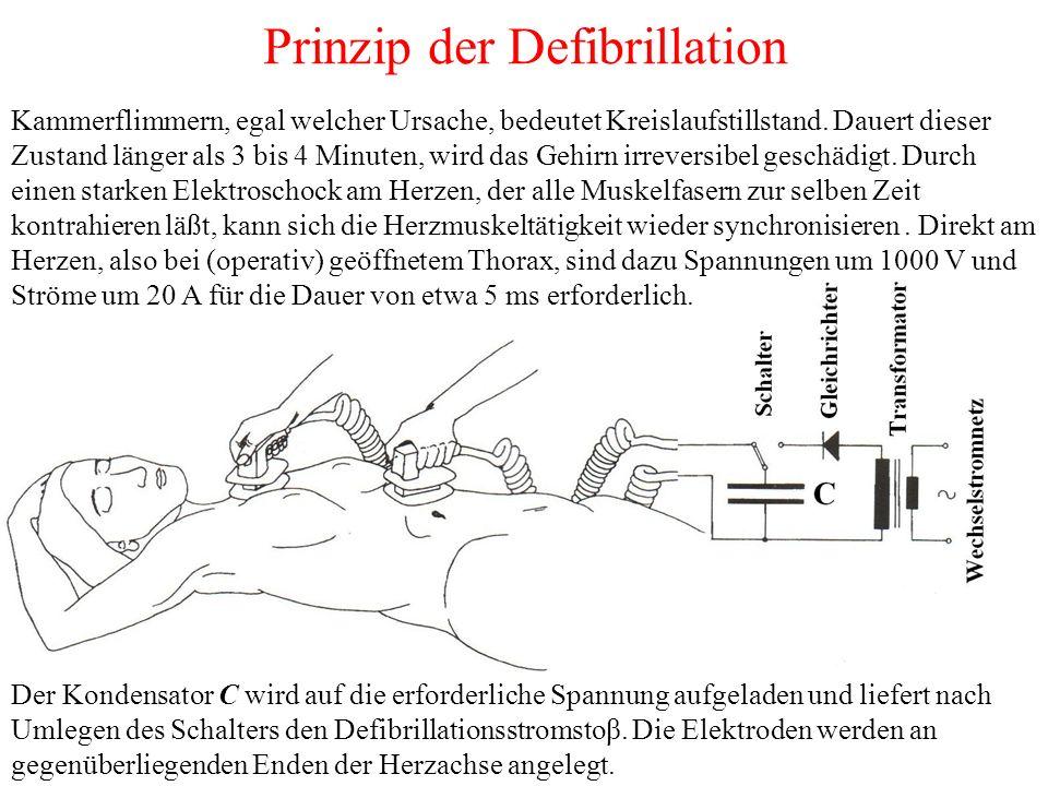 Prinzip der Defibrillation Der Kondensator C wird auf die erforderliche Spannung aufgeladen und liefert nach Umlegen des Schalters den Defibrillationsstromstoβ.