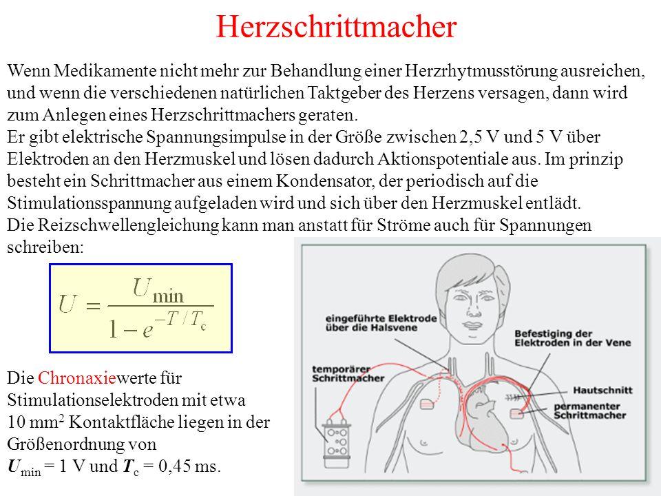 Herzschrittmacher Wenn Medikamente nicht mehr zur Behandlung einer Herzrhytmusstörung ausreichen, und wenn die verschiedenen natürlichen Taktgeber des Herzens versagen, dann wird zum Anlegen eines Herzschrittmachers geraten.