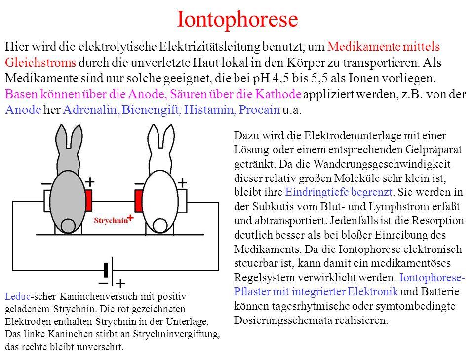 Iontophorese Hier wird die elektrolytische Elektrizitätsleitung benutzt, um Medikamente mittels Gleichstroms durch die unverletzte Haut lokal in den Körper zu transportieren.