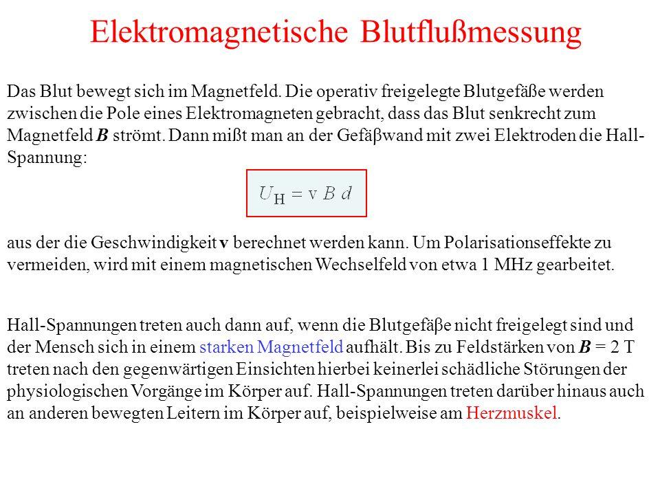 Elektromagnetische Blutflußmessung Das Blut bewegt sich im Magnetfeld.