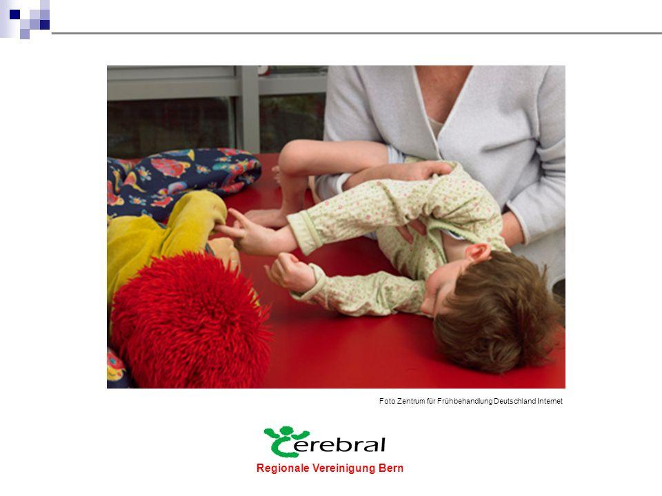 """Regionale Vereinigung Bern  1961 wurde zur Mittelbeschaffung für die Integration von Kindern mit cerebralen Beeinträchtigungen die """"Schweizerische Stiftung für das cerebral gelähmte Kind gegründet."""