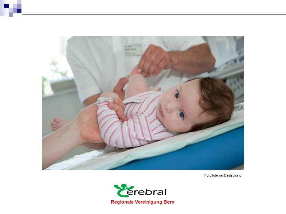 Regionale Vereinigung Bern  In den 50iger Jahren trafen sich allein gelassene und meist überforderte Eltern von Kindern mit cerebralen Beeinträchtigungen in den Wartezimmern von Ärzten und Therapeutinnen.