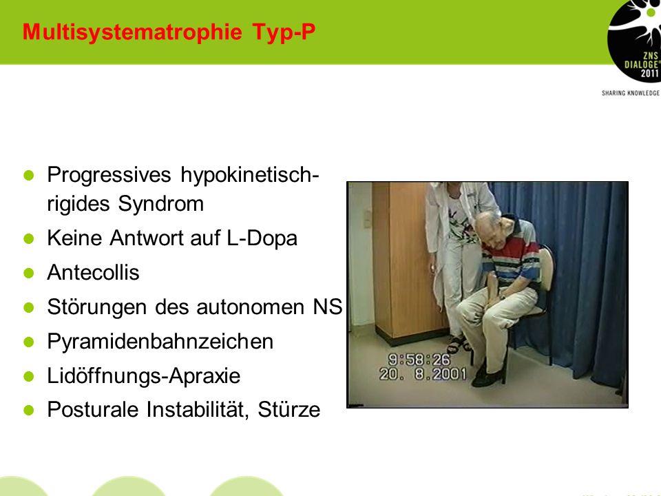 Subtypen (nach Wenning et al., 1994) MSA-P-Subtyp: Bei 80% der Patienten Parkinsonsymptomatik vorherrschend Neuropathologisch striatonigrale Degenerat