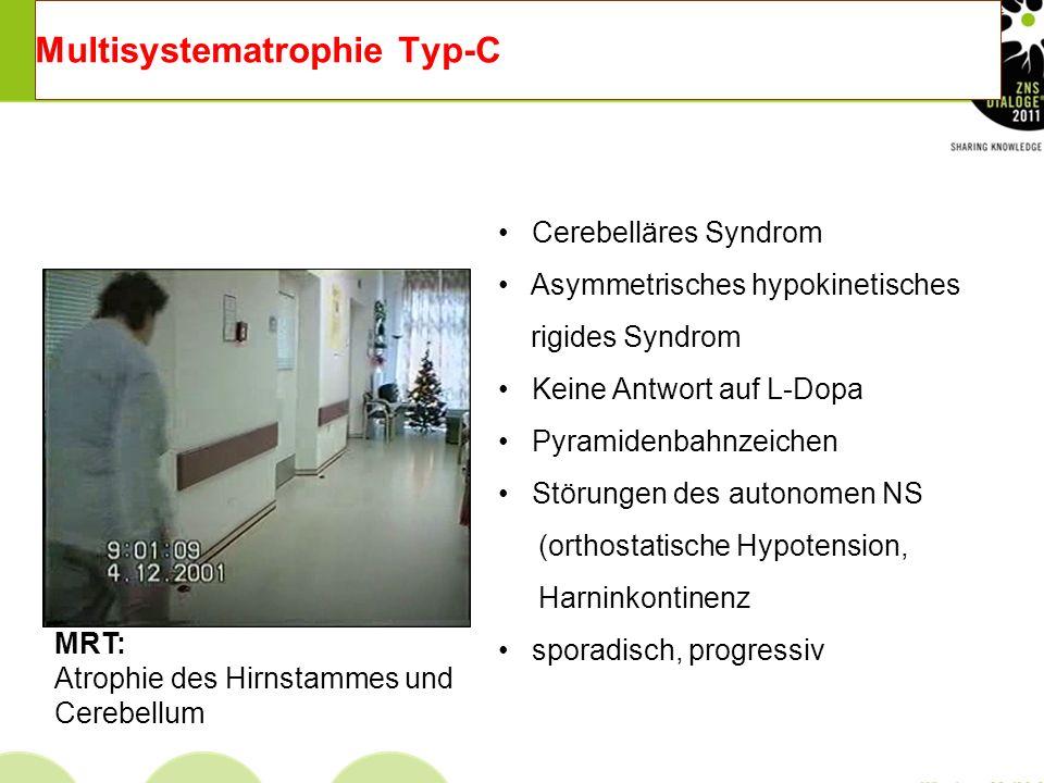 Multisystematrophie Typ-P Progressives hypokinetisch- rigides Syndrom Keine Antwort auf L-Dopa Antecollis Störungen des autonomen NS Pyramidenbahnzeic