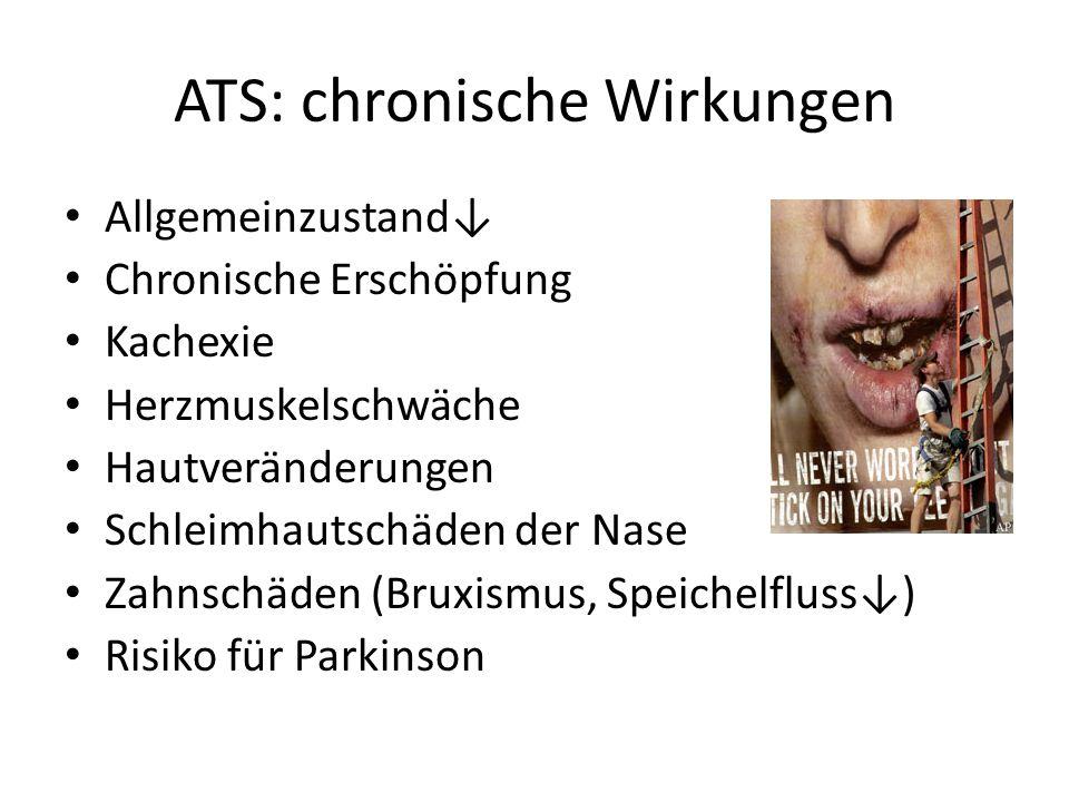 ATS: chronische Wirkungen Allgemeinzustand↓ Chronische Erschöpfung Kachexie Herzmuskelschwäche Hautveränderungen Schleimhautschäden der Nase Zahnschäden (Bruxismus, Speichelfluss↓) Risiko für Parkinson