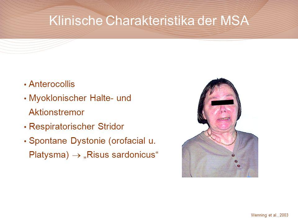 Klinische Charakteristika der MSA Anterocollis Myoklonischer Halte- und Aktionstremor Respiratorischer Stridor Spontane Dystonie (orofacial u.