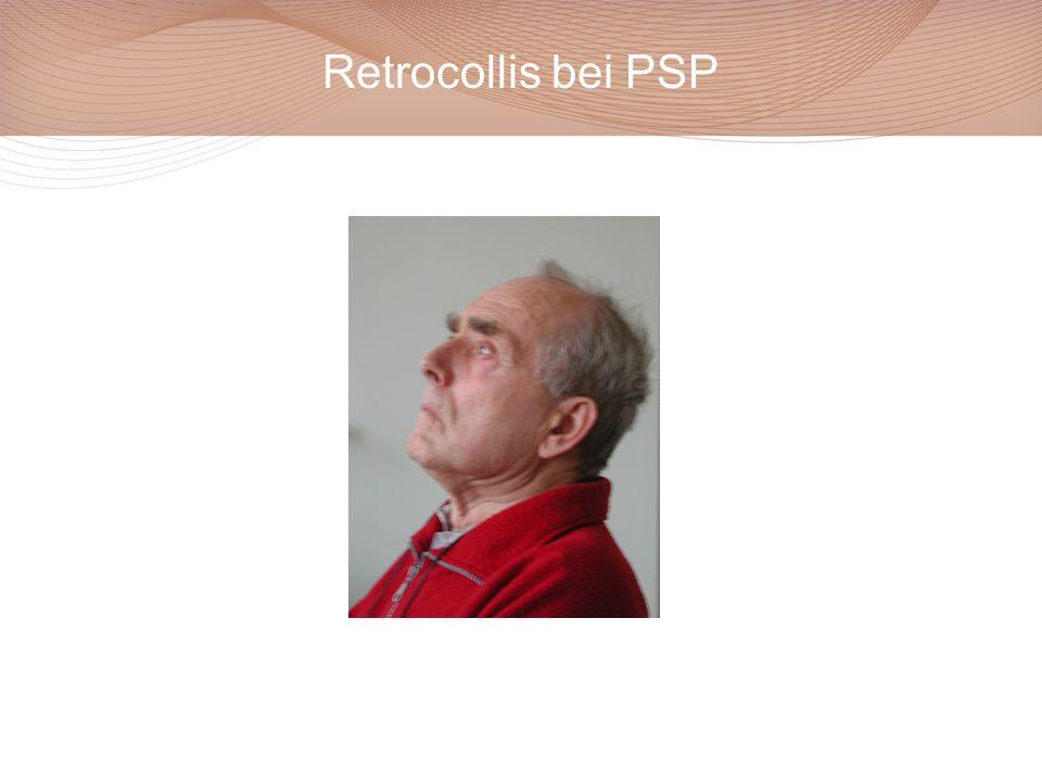 Retrocollis bei PSP