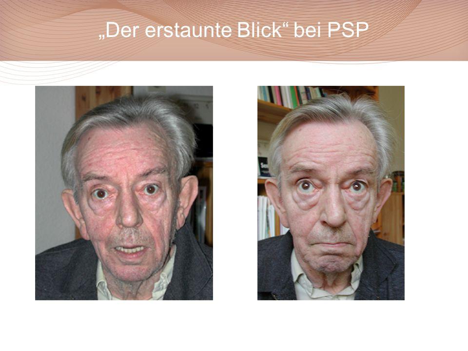 """Der erstaunte Blick bei PSP"
