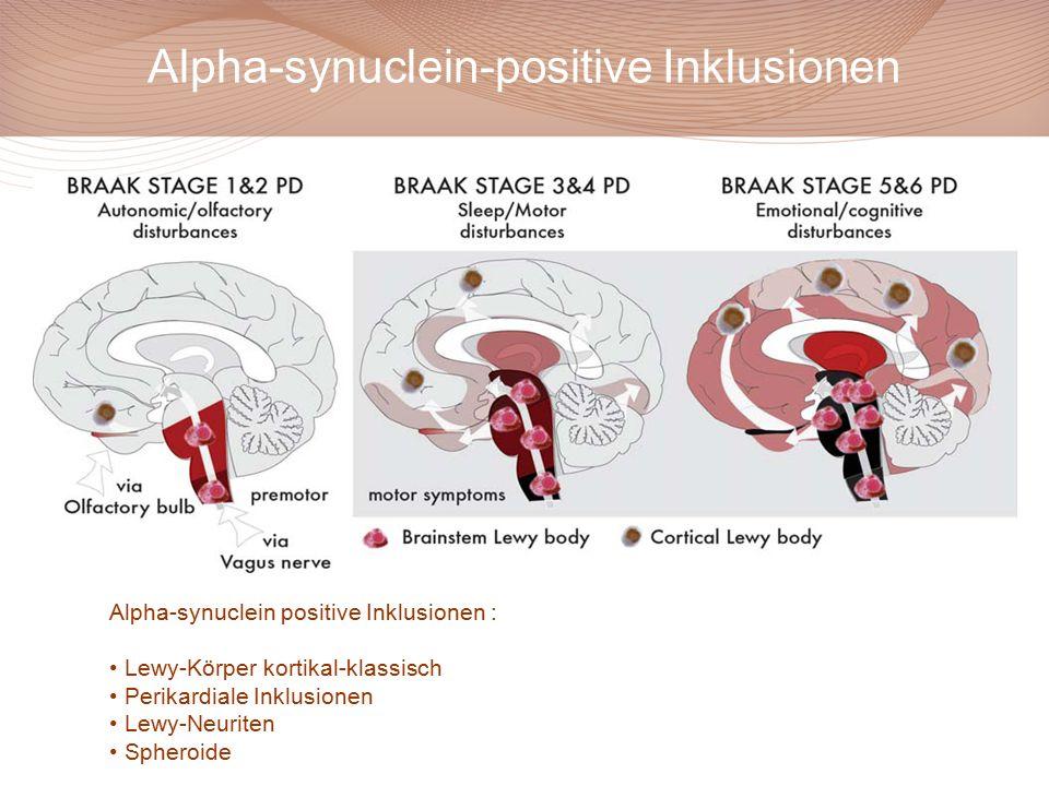 Braak et al. J Neurol 2002 Alpha-synuclein-positive Inklusionen Alpha-synuclein positive Inklusionen : Lewy-Körper kortikal-klassisch Perikardiale Ink