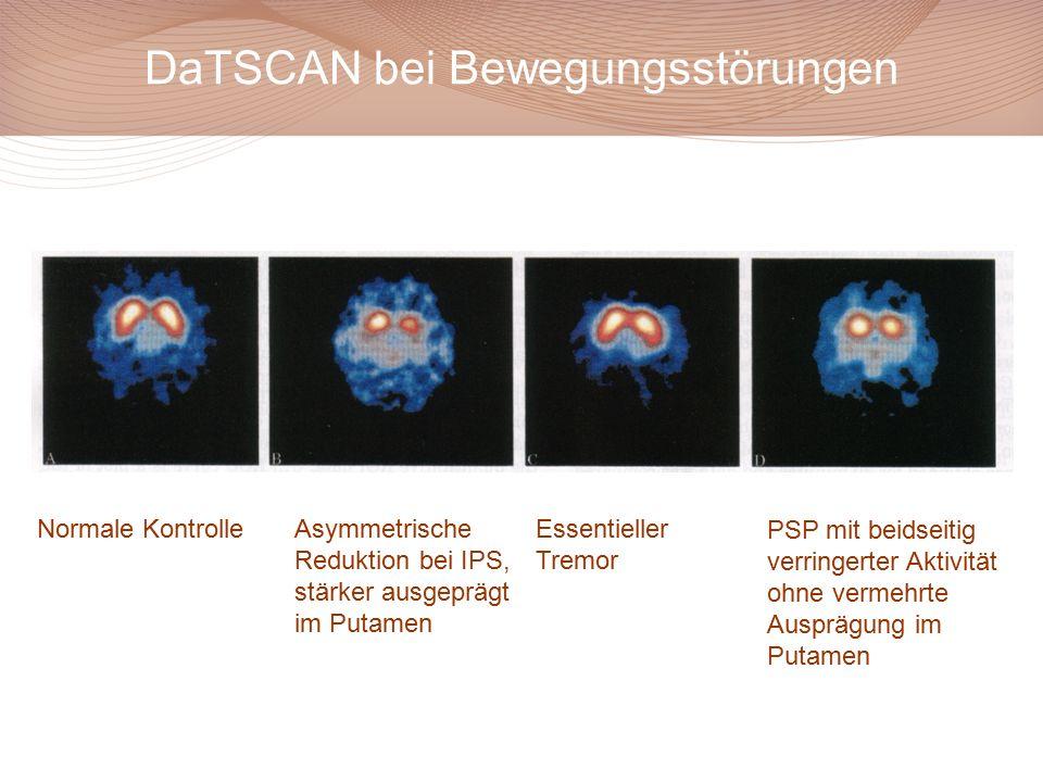 DaTSCAN bei Bewegungsstörungen Normale Kontrolle Asymmetrische Reduktion bei IPS, stärker ausgeprägt im Putamen PSP mit beidseitig verringerter Aktivität ohne vermehrte Ausprägung im Putamen Essentieller Tremor