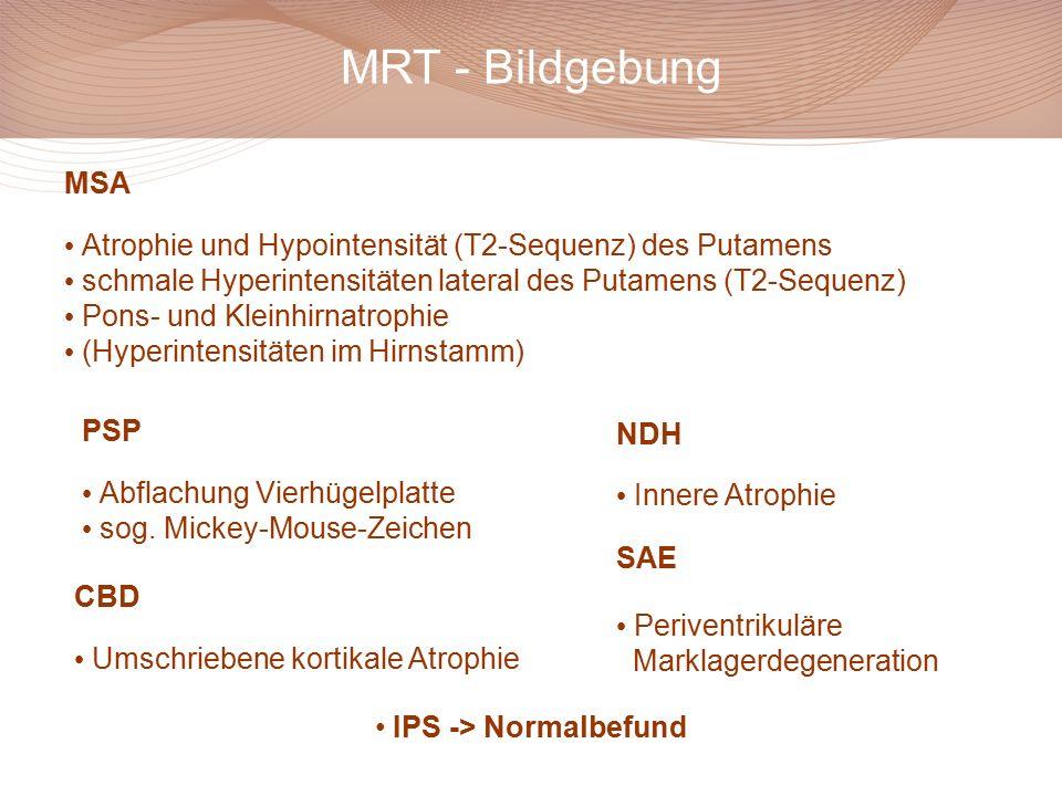 MRT - Bildgebung MSA Atrophie und Hypointensität (T2-Sequenz) des Putamens schmale Hyperintensitäten lateral des Putamens (T2-Sequenz) Pons- und Kleinhirnatrophie (Hyperintensitäten im Hirnstamm) PSP Abflachung Vierhügelplatte sog.