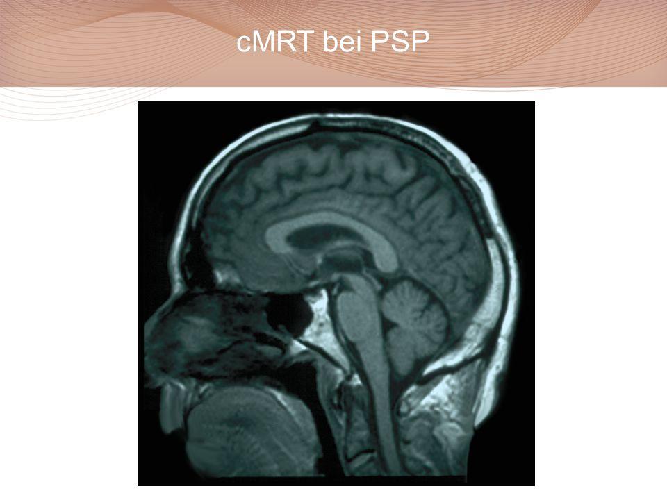 cMRT bei PSP