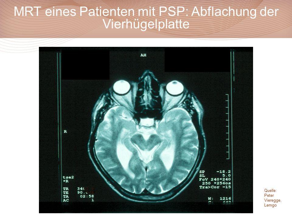 MRT eines Patienten mit PSP: Abflachung der Vierhügelplatte Quelle: Peter Vieregge, Lemgo
