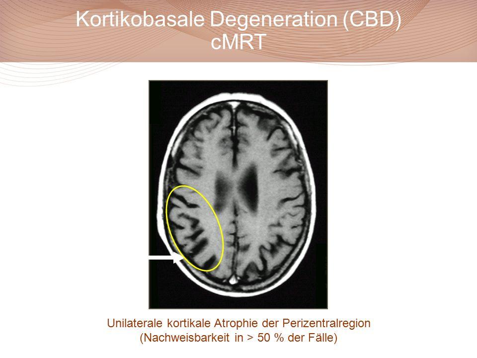 Unilaterale kortikale Atrophie der Perizentralregion (Nachweisbarkeit in > 50 % der Fälle) Kortikobasale Degeneration (CBD) cMRT