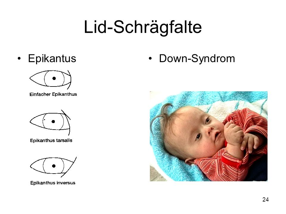 24 Lid-Schrägfalte EpikantusDown-Syndrom