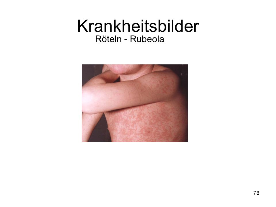 78 Röteln - Rubeola Krankheitsbilder