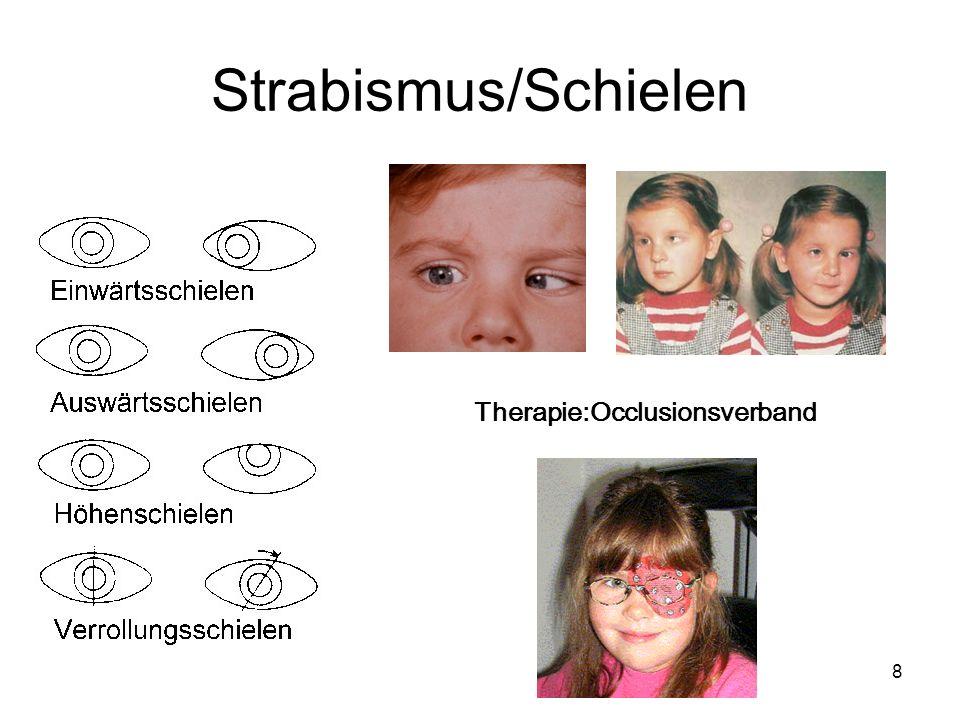 8 Strabismus/Schielen Therapie:Occlusionsverband