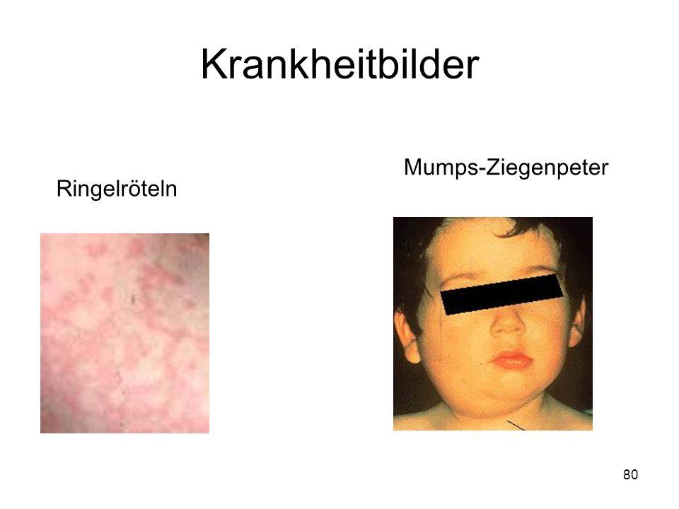 80 Ringelröteln Mumps-Ziegenpeter Krankheitbilder