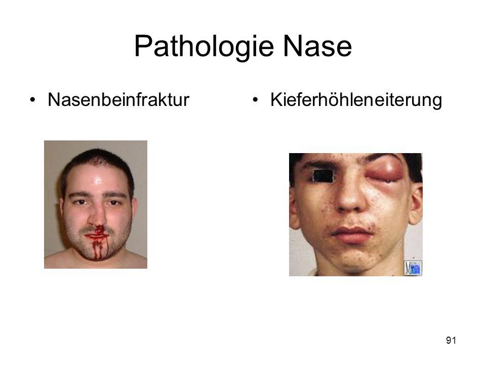 91 Pathologie Nase NasenbeinfrakturKieferhöhleneiterung
