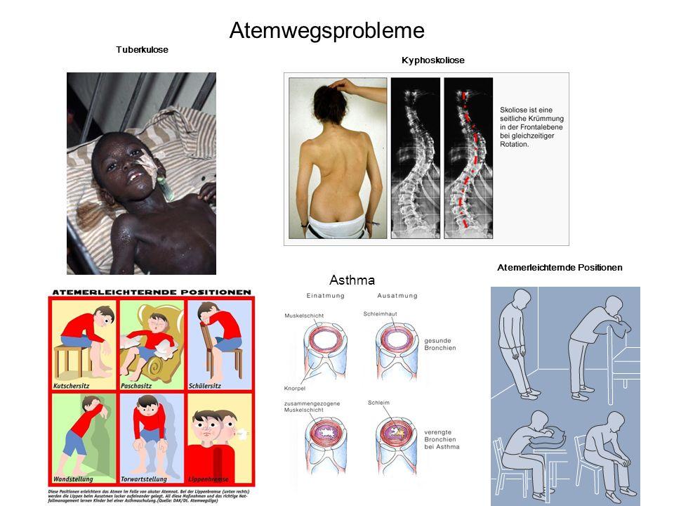 12 Tuberkulose Kyphoskoliose Atemerleichternde Positionen Atemwegsprobleme Asthma